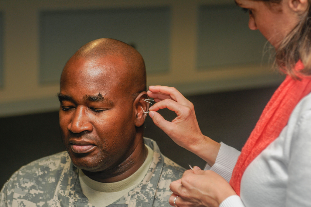 acupuncture is so effective democrats want to provide it free for veterans