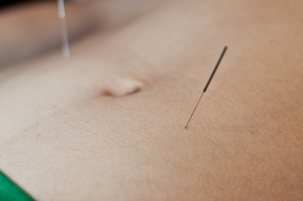 stomach acupuncture at tian shu helps to relieve constipation
