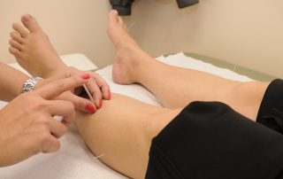 acupuncturist oxford