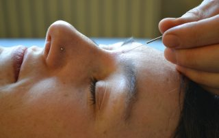 Affordable acupuncture in oxford